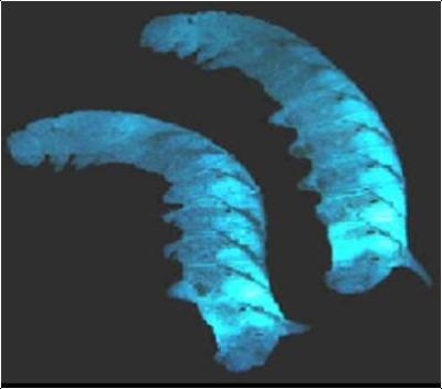 p-luminescens-in-cadaver